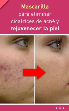 Skin care advice for better skin now acne beauty hacks Overnight Acne Remedies, Home Remedies For Acne, Best Eyebrow Products, Pores, How To Treat Acne, Skin Problems, Face Care, Good Skin, Beauty Skin