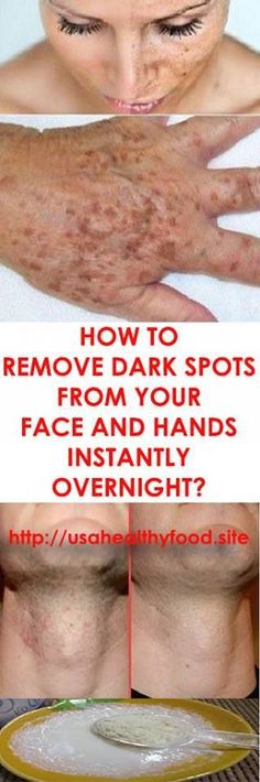 How to Get Rid of Brown Spots on Face and Hands Dark Spots: How to Get Rid of Them Black Spots On Face, Brown Spots On Hands, Dark Spots On Skin, Skin Spots, Natural Cures, Natural Beauty, Skin Treatments, The Cure, Beauty Hacks