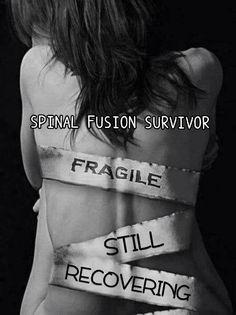 Fragile back                                                       …                                                                                                                                                                                 More
