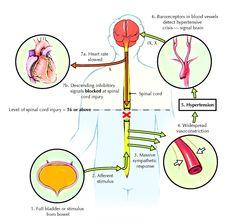 autonomic hyperreflexia/dysreflexia - seen in spinal cord injuries, Skeleton