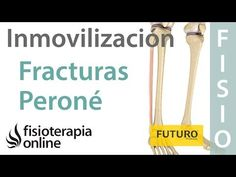 Fracturas menores o fisuras de peroné - Inmovilización parcial o relativa - YouTube Youtube, Health Fitness, Physical Therapy, Massage, Vocabulary, Routine, Natural Remedies, Health, Youtubers