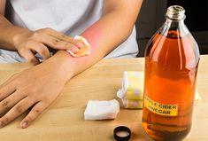 6 Apple Cider Vinegar Remedies to Heal a Skin Rash Home Remedies For Bruises, Home Remedies For Ringworm, Top 10 Home Remedies, Apple Cider Vinegar Remedies, Apple Cider Vinegar For Skin, Apple Coder Vinegar, How To Help Sunburn, Redness On Face, Skin Rash