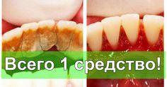 Отличный способ избавиться от зубного камня самому и дома! | Будете Здоровы