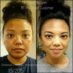 "Wow check out preferred customer Jenn Nguyen results:   ""A HUGE thank you to my cousin Alta Seludo-Nguyen for introducing me to the Rodan + Fields skincare products. My skin is forever transformed!""  Ready to see your own before & after? Msg me & let's get you started to your #bestskinever!!!   #AgeBackwards #Skincare #ConsistencyIsKey #MakeupFree #foundationfree #lifechangingskincare"