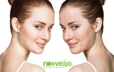 Body & Soul Clinic will help you get back your healthier & glowing skin with our laser therapy for acne removal. Visit our online portal and book your Phototherapy treatment today! Kendall Jenner, Age Spot Remedies, How To Do Eyeshadow, Too Faced Highlighter, Back Acne Treatment, Skin Specialist, Moisturizer With Spf, How To Get Rid Of Acne, Skin Problems