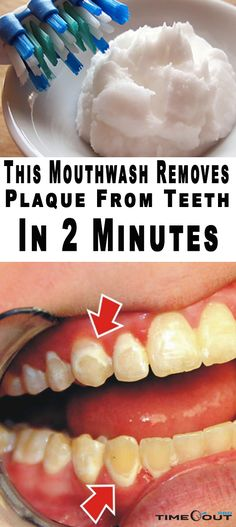THIS MOUTHWASH REMOVES PLAQUE FROM TEETH IN 2 MINUTES-You might not be aware of the fact that oral health actually determines your overall health. One of the vital parts of the procedure for oral hygiene consists of using mouthwash. It reduces the pre… Teeth Health, Healthy Teeth, Oral Health, Dental Health, Dental Care, Health Heal, Health Diet, Healthy Food, Remedies For Tooth Ache
