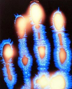 Kirlian Photography Of The Human Hand - Life Force Energy. Chi / Ki / Prana / Ether / Bios. ELECTRICITY -THE BREATHE OF LIFE