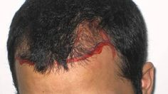 Dr Kalia Best Hair Transplant Clinic - Google+