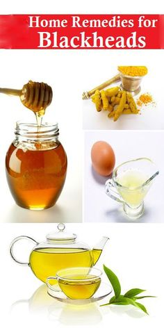 DIY Facial at Home: 10 Quick & Easy Recipes - Try the Edible Mud Mask recipe to remove blackheads and moisturize your skin! For this recipe and more, visit: http://dermera.com/blog/facial-at-home/ #facialathome