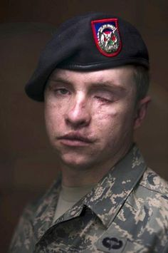 """A True Hero""  Senior Airman Mike Malarsie, USAF, is a tactical air control party (TACP) specialist. He was hit by a roadside bomb while he, one other TACP and 11 Army soldiers were on foot patrol near Kandahar, Afghanistan, January 3, 2010. The blast shattered his jaw, broke his nose, caused multiple lacerations to his face and neck, and caused the eventual loss of his eyesight.competitive.""  http://military-civilian.blogspot.com/2013/02/a-true-hero.html#"