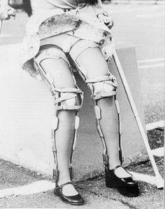 crutches, leg brace, short leg