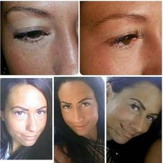 The top pictures are before the procedure, the bottom middle and right are 2 days after, and the | Yelp