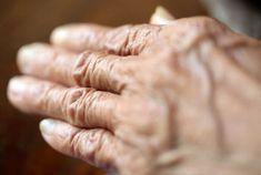 Artritída komplikuje mnohé aktivity každodenného života - otváranie fľašky, zapínanie gombíkov ... Muhammad Ali, Holding Hands
