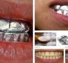 Esto es lo que sucede cuando colocas papel de aluminio en tus dientes por 1 hora