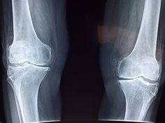 In a published study in the Journal of Bone and Joint Surgery, at least of people wait too long for Knee Replacement Surgery. Partial Knee Replacement, Knee Replacement Surgery, Joint Replacement, Rheumatoid Arthritis Symptoms, Bone Fracture, Lose Thigh Fat, Endocannabinoid System, Knee Surgery, Immune System