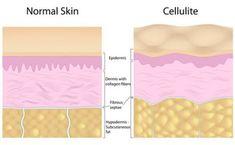 Anatomy of cellulite