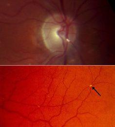 Hollenhorst plaque retinal artery (Carotid Stenosis).