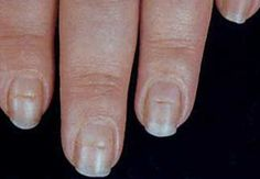 Information On Fingernail Disorders