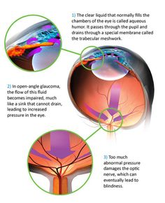 Mechanism of Primary Glaucoma Laser Eye Surgery, Eye Exam, Cool Eyes, The Cure, Perth, Medicine, Passion, Sign, Image