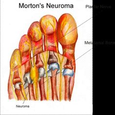 Morton's Neuroma causes burning, tingling, cramping, sharp pain and numbness in the ball of the foot and toes. It is usually worse in shoes. Many people take their shoes off and rub their foot for relief!