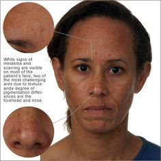 1000 Images About Skin Melasma Hyperpigmentation On