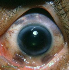 Melanosis bulbi or melanosis oculi has maplike pigment areas in the sclera. These pigmented areas do not reach the limbus. The iris is usually heavily pigmented with melanosis bulbi/melanosis oculi. 90% of the cases are unilateral.Usually the function of the eye remains normal. Occasionally a malignant change may occur.