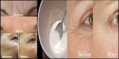 Anti Wrinkle Supplements Fight Wrinkles From Within Face Scrub Homemade, Homemade Skin Care, Best Anti Aging Creams, At Home Face Mask, Prevent Wrinkles, Skin Firming, Skin Cream, Organic Skin Care, Creme