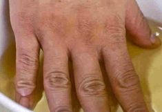 Remedies Arthritis If you suffer from joint pain, you need to read this! - If you suffer from joint pain, you need to read this! Arthritis Relief, Rheumatoid Arthritis Symptoms, Pain Relief, Le Mal A Dit, Liver Detox Cleanse, Natural Home Remedies, Holistic Remedies, Flat Stomach, Back Pain
