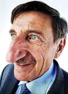 """Largest nose on a living person 3.46"""""""