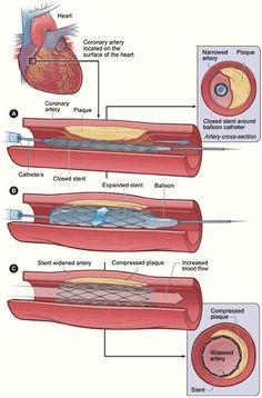 """medicalschool: """"Diagram of stent placement In A, the catheter is inserted across the lesion. In B, the balloon is inflated, expanding the stent and compressing the plaque. In C, the catheter and. Nursing Tips, Nursing Notes, Nursing Care, Cath Lab Nurse, Mini Tela, Cardiac Nursing, Medical Coding, Anatomy And Physiology, Nurse Life"""