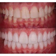 Follow @odvictorsanchez Interesante caso donde hicimos el reemplazo de carillas de resina en mal estado en maxilar superior recuperamos su DVO y realizamos un diseño superior e inferior en carilla de cerámica en mínima invasión colocación de implantes a nivel del 46 ( el cual está en proceso de óseo integración ). biology function & Esthetic implant in integration process in 4.6 and VDO augmentation. #dentistry #estheticdentistry #biology #function #esthetics #victorsanchez #ceramic…