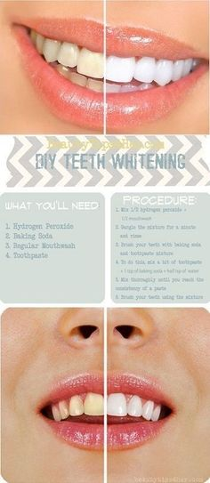 Homemade Teeth Whitening  Once a week until desired results are reached,  then, reduce 4ddf774989
