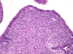 Malignant phyllodes = >5 mits/10 HPF, cellular stroma, heterologous elements, pleomorphism