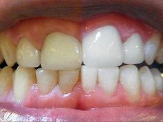 Natural Teeth Whitening Remedies Unbelievably Simple Trick Erases Teeth Stains Over Night - There is a way to get rid of tooth decay and heal cavities using products that are natural and easily available. Smile Whitening, Teeth Whitening Remedies, Teeth Whitening System, Natural Teeth Whitening, Whitening Kit, Heal Cavities, How To Prevent Cavities, Fluorosis Dental, Dental Care