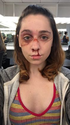 Beat up face and broken nose makeup (Mia. Beat up face and broken nose makeup (Mia Nicole Kundert) Bruises Makeup, Nose Makeup, Scary Makeup, Sfx Makeup, Makeup Looks, Hair Makeup, Bruises Aesthetic, Broken Nose, Media Makeup