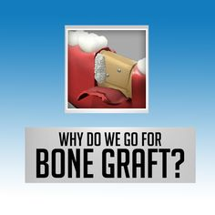 A bone graft is a surgical procedure used to fix problems with bones or joints. It helps in fixing bones that are damaged from trauma or any injuries.