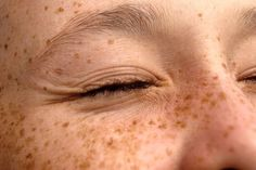 Ideas photography people body freckles for 2019 The Human Body, Anne With An E, Pixie Hollow, Anne Of Green Gables, Character Inspiration, Find Image, Pretty, People, Photos