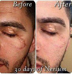 #Nerium on facial scarring