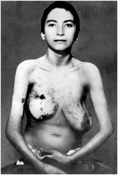"Auschwitz experiments. This woman, a concentration-camp survivor, was the victim of horrific ""experimental"" operations upon her breasts. Possibly, the doctors were testing a new treatment for cancer or were interested in various aspects of the woman's reproductive system."