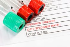 How to Interpret Advanced Cholesterol Test Results - Mark's Daily Apple