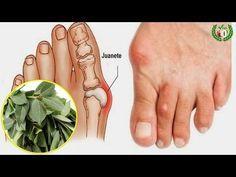 Como Tratar Los Juanetes Sin Cirugía con estos remedios naturales - YouTube