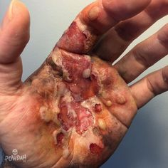 Image Collection #4: Moulage Gore Electrical burn with blisters.