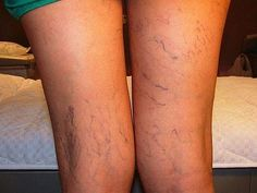 Varicose veins are gnarled, enlarged veins. Any vein may become varicose, but the veins most commonly affected are those in your legs and feet. That's because standing and walking upright increases the pressure in the veins of your lower body. Varicose Veins Treatment, Operation, 54 Kg, Celebrity Kids, Blood Vessels, Creative Food, Real Women, Health And Beauty, Surgery