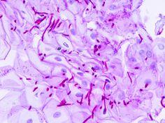 PURIFICACION DE AIRE AIRLIFE te comenta. ¿Cómo se produce la candidiasis? Las cándidas son unos hongos que se encuentran de forma natural en el medio ambiente, en objetivos inanimados, animales, alimentos y forman parte de la flora saprófita del los humanos en la piel, en el tubo digestivo (boca y orofaringe) y en la piel y mucosas de los genitales femeninos.