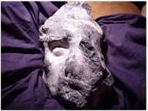 This photo is a fossilized head of a man discovered near Gothenburg, Sweden. It clearly appears to be the head of a man, with very recognizable features immortalized in stone, or in this case flint. This presents a huge problem for current evolutionary and geological theories since flint (or any rock for that matter) was supposedly formed tens of millions of years before humans evolved. According to current geological theories flint stones were developing during the Cretaceous period 65-140…