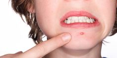 Tips to get rid of Boils  #Skincare