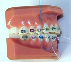 How to floss with braces!  http://www.robinson-ries.com/