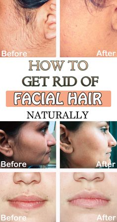 How to get rid of facial hair naturally - WifeMommyWoman