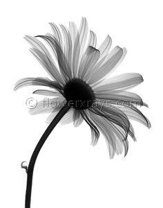 x ray of daisy