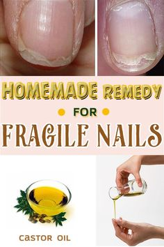 Nothing can break a fresh manicure more than fragile nails, which are morbid. You may have tried different solution, but none works as these remedies.